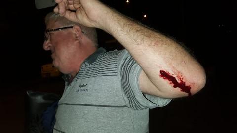 Braço sangrando